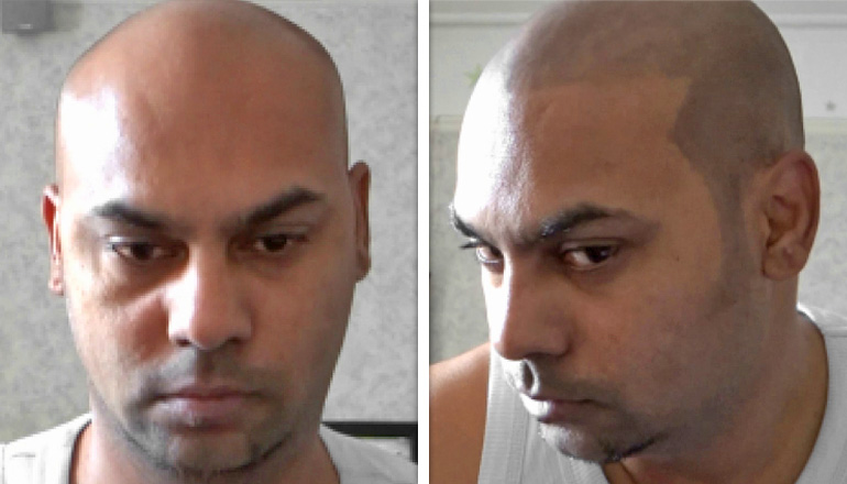 Dermmatch Before And After Shots