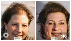 DermMatch Hair Loss Concealer - Great For Thin Hair Or Small Bald ...